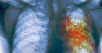 Туберкулез - реальная опасность для каждого